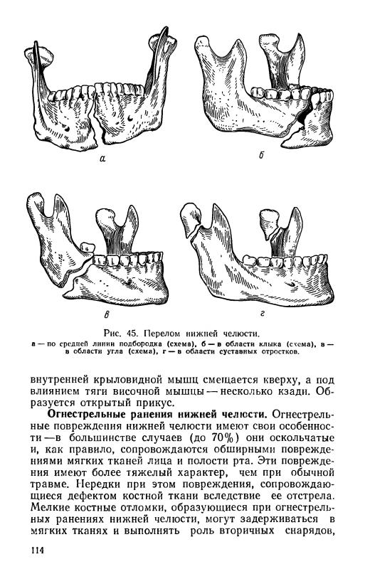 Pecker RJ Diseases of teeth and oral cavity, 1980