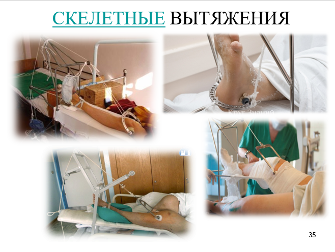 NURSING OF PATIENTS WITH SKELET EXTENSION